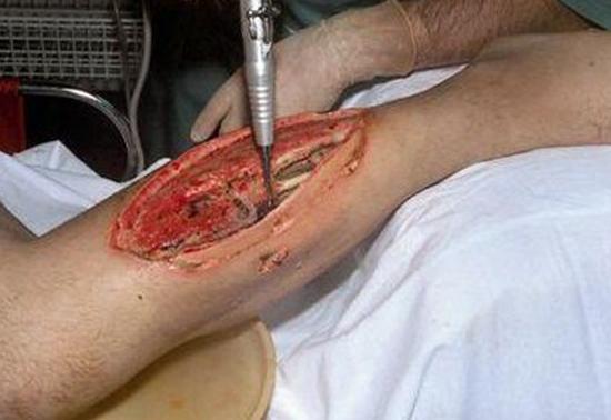 Лечение газовой гангрены проводится хирургическими методами.