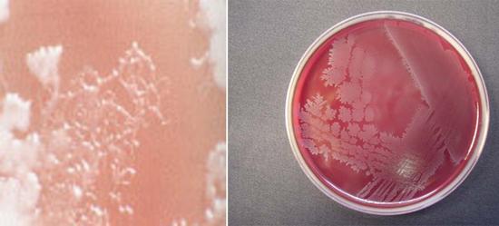 Выращивание клостридий в лаборатории