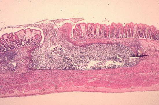 проникновение паразитов скозь стенки кишечника