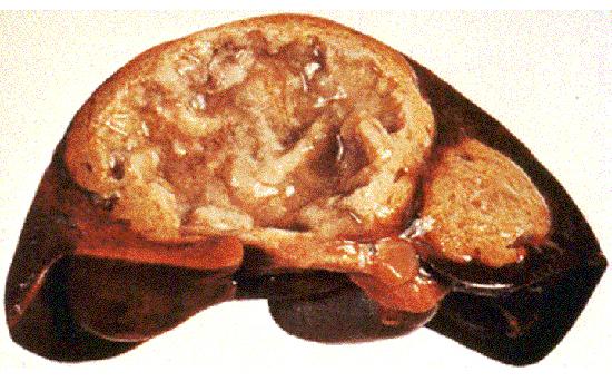 печень пораженная Entamoeba histolytica
