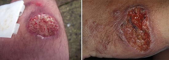 протозойное заболевание кожи