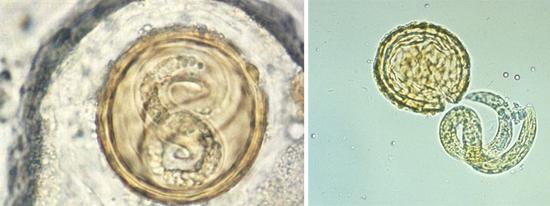 личинки глистов