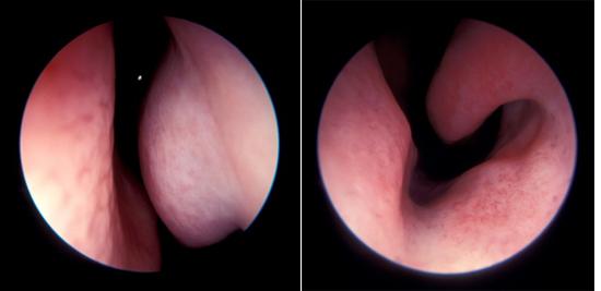 Отечность слизистой оболочки носа