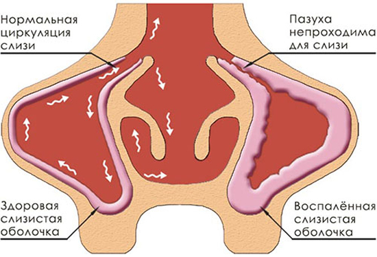 схема воспаления носовых полостей