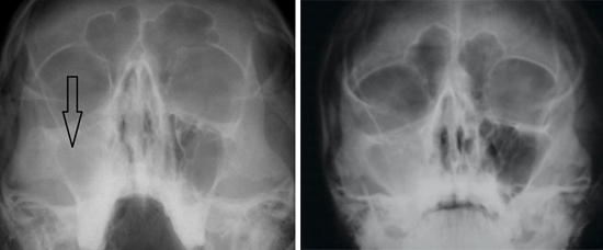 рентген при риносинусите