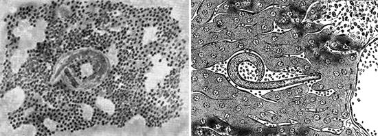 глисты в организме