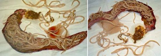 черви в кишках