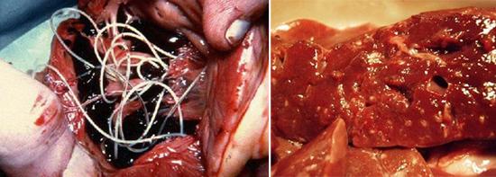гельминты в разных органах