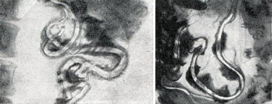 гельминты в кишках