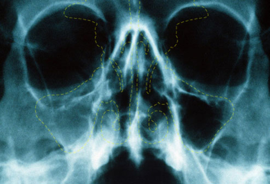 Рентген при синусите