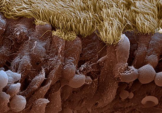 ворсинки слизистой оболочки носа