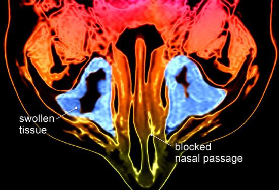 риноситусит на МРТ