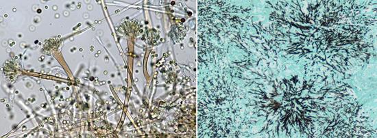 Aspergillus под микроскопом