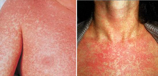 признак вирус Эпштейна-Барр инфекции