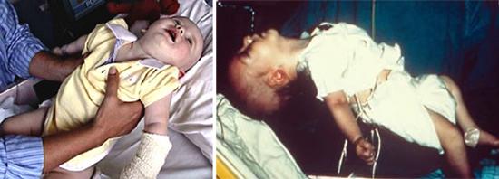 Поражение младенцев ботулотоксином