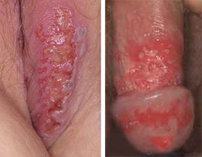 вирусные венерические заболевания