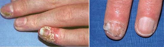 кандидоз ногтей грибок