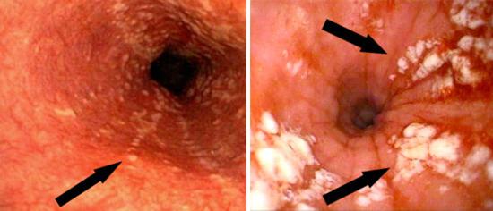молочница кишечника