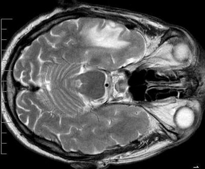 candida albicans поражение мозга