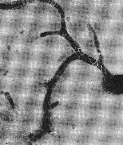 патология в сосудах при сыпном тифе