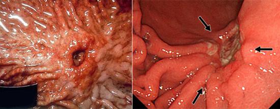 поражение желедка и 12-перстной кишки