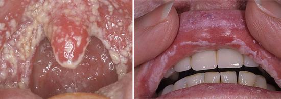 грибок кандида во рту