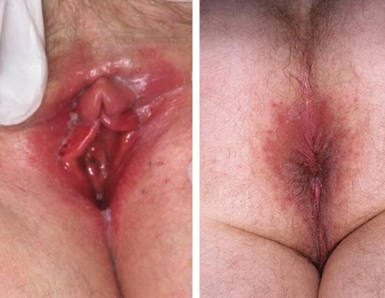 грибок кандида у женщин