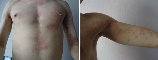 кожные проявления ВИЧ-инфекции