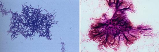 микроструктура грибков