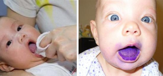 лечение молочницы во рту у детей