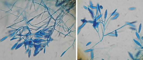 грибки микроспорум