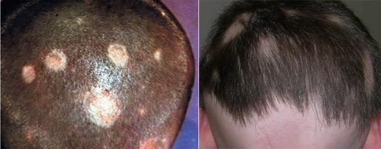 поражение кожи головы грибком микроспорум