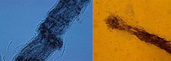 волос, пораженный грибком микроспорум