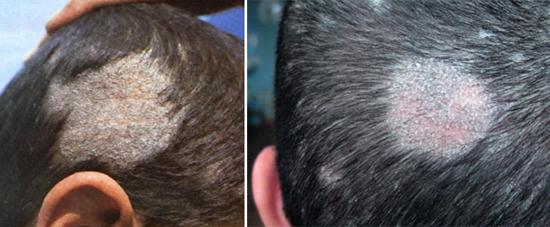 микроспория у человека на голове