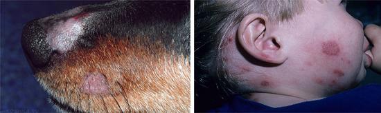 микроспория у животных и человека