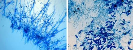 патогенные грибки Microsporum