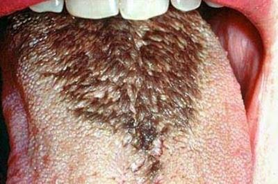 заболевание ротовой полости