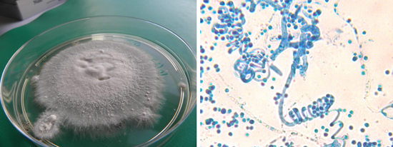 колонии грибка трихофитон