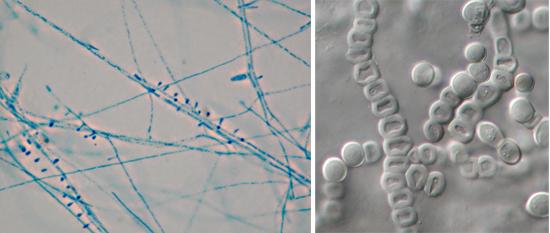 грибок трихофитон под микроскопом