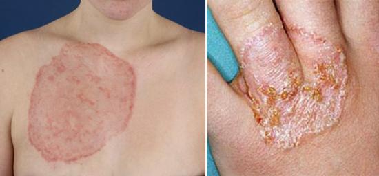 микозы на коже