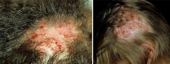 Trichophyton на коже головы