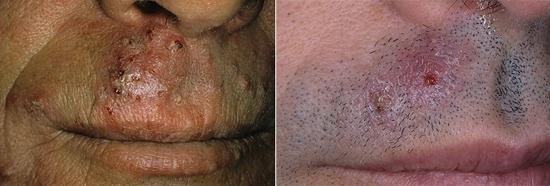 Trichophyton на лице