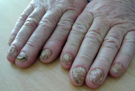 ногти, пораженные Trichophyton