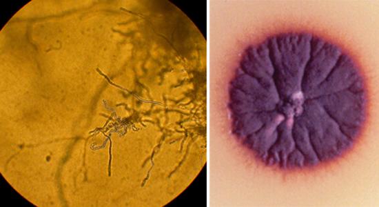 грибок трихофитон