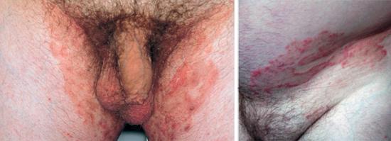 паховый грибок у мужчин и женщин