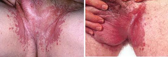 кандидоз кожи у мужчин