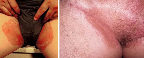 воспаление в паху у мужчин и женщин