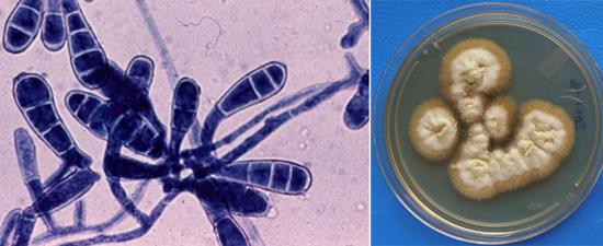 колонии патогенных грибов