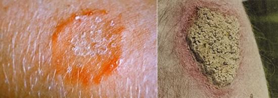 поражение кожи при парше