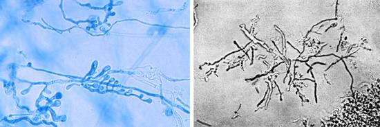 патогенные грибки под микроскопом